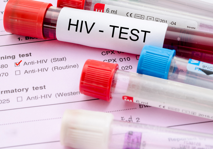 ВИЧ-статистика. Нет роста, уже хорошо