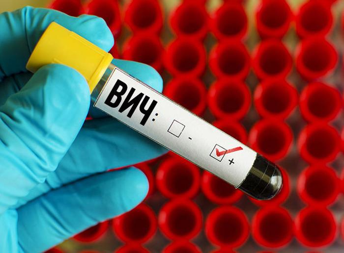 В Шахтах более 1200 больных СПИДом